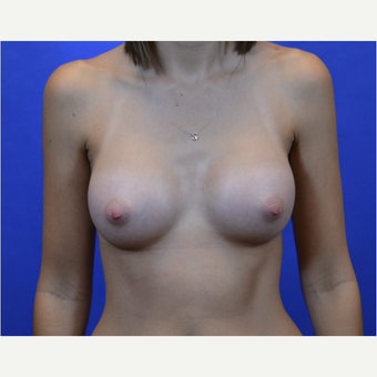 35-44 year old woman treated with Breast Augmentation after 3579934