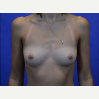 35-44 year old woman treated with Breast Augmentation before 3579934