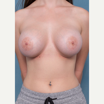 18-24 year old woman treated with Breast Augmentation after 3062027