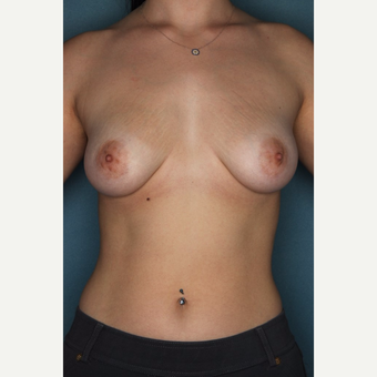 18-24 year old woman treated with Breast Augmentation before 3062027