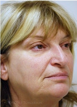 55-64 year old woman treated with Rhinoplasty before 3259214