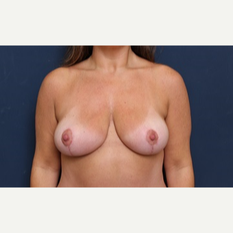 35-44 year old woman treated with Breast Reduction after 3344920
