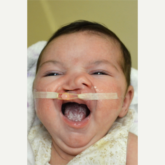 17 or under year old woman treated with Cleft Lip And Palate Repair before 3226507