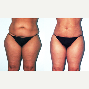 35-44 year old woman treated with Liposuction before 3415396