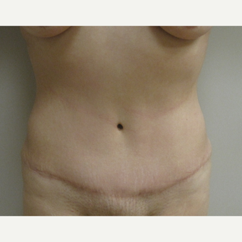 25-34 year old woman treated with Tummy Tuck after 3481163
