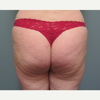 35-44 year old woman treated with Butt Augmentation before 1574916