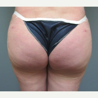 35-44 year old woman treated with Butt Augmentation after 1574916
