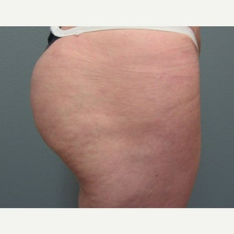 35-44 year old woman treated with Butt Augmentation 1574916