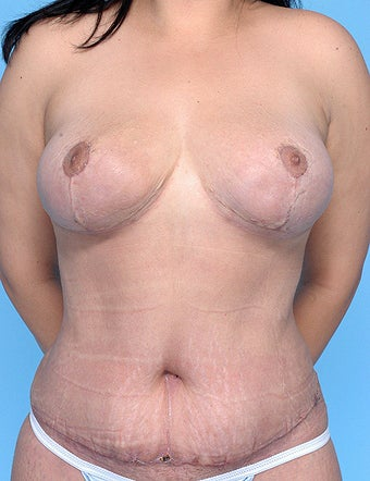 Breast lift and tummy tuck with liposuction