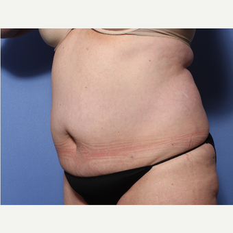 45-54 year old woman treated with Tummy Tuck before 3505983