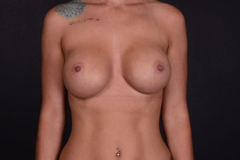 25-34 year old woman treated with Breast Implants after 3069900