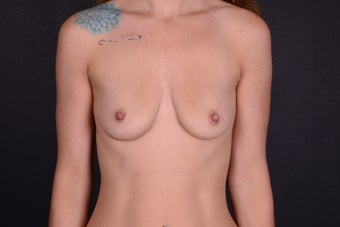 25-34 year old woman treated with Breast Implants before 3069900