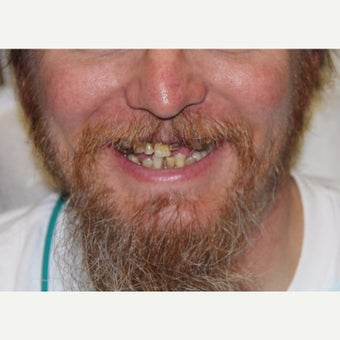 35-44 year old man treated with All-on-4 Dental Implants before 1762332