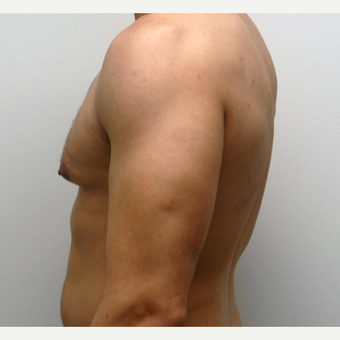 35-44 year old man treated with Male Breast Reduction before 3383232