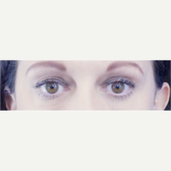 35-44 year old woman treated with Eye Bags Treatment after 3698472