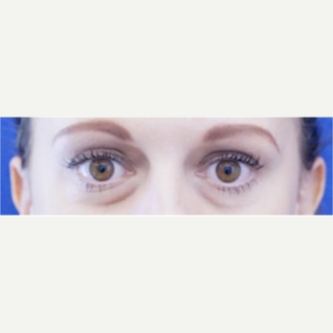 35-44 year old woman treated with Eye Bags Treatment before 3698472