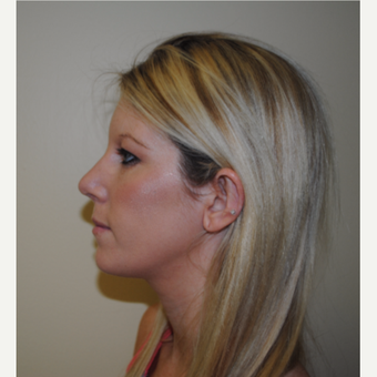 18-24 year old woman treated with Rhinoplasty after 3646909