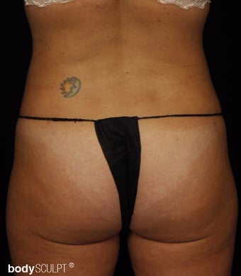 35-44 year old woman treated with Smart Lipo after 3542225