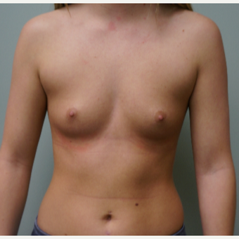Breast Augmentation before 3453930