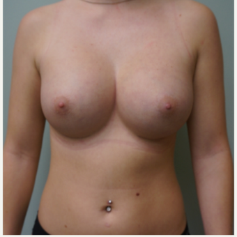 Breast Augmentation after 3453930