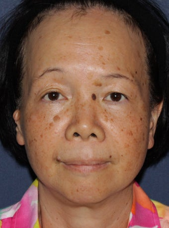 50 year old Asian female treated for brown spots and age spots before 1058142