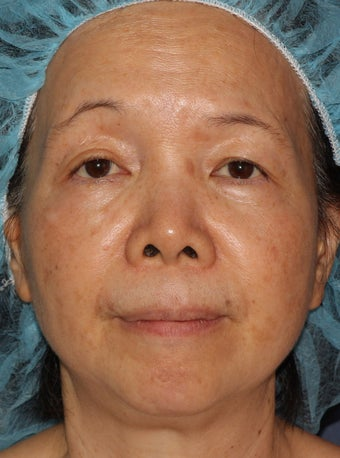 50 year old Asian female treated for brown spots and age spots after 1058142