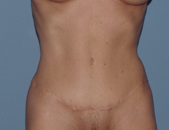 Abdominoplasty (tummy tuck) in the thin patient after 845707