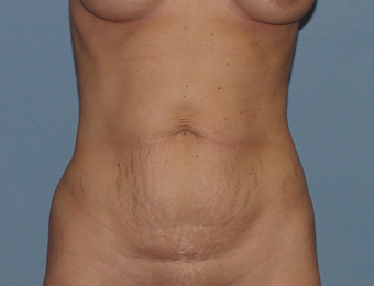 Abdominoplasty (tummy tuck) in the thin patient before 845707