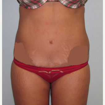 45-54 year old woman treated with Liposuction before 3009573
