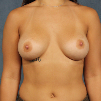 19 year old breast augmentation with silicone gel breast implants and long-term followup. after 3005318