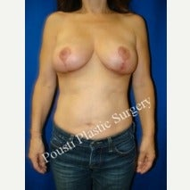 55-64 year old woman treated with Breast Implant Removal after 2293958
