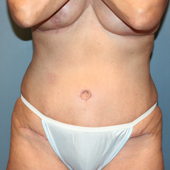 Laser Liposuction and Tummy Tuck after 3371936