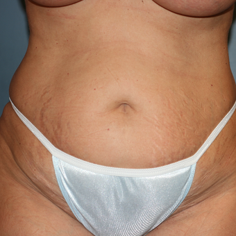 Laser Liposuction and Tummy Tuck before 3371936