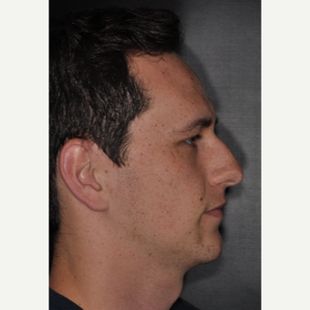 18-24 year old male treated with Septoplasty 6 weeks post-op before 3499641