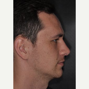 18-24 year old male treated with Septoplasty 6 weeks post-op after 3499641