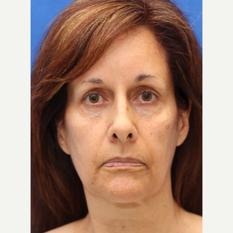 58 year old woman treated with Mini Lift, Laser Resurfacing and Fat Transfer to the Face before 3849842