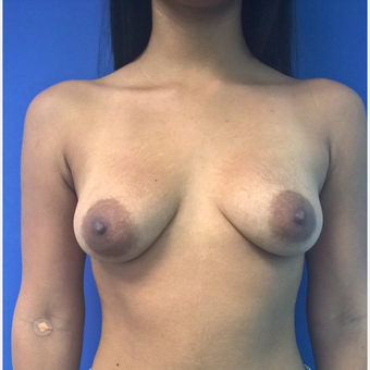 18-24 year old woman treated with Breast Lift with Implants before 3746891