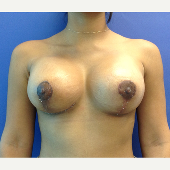 18-24 year old woman treated with Breast Lift with Implants after 3746891