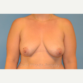 42 year old woman treated with Breast Lift with Implants before 3094365