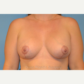 42 year old woman treated with Breast Lift with Implants after 3094365