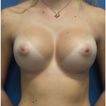 Breast Augmentation after 3807224