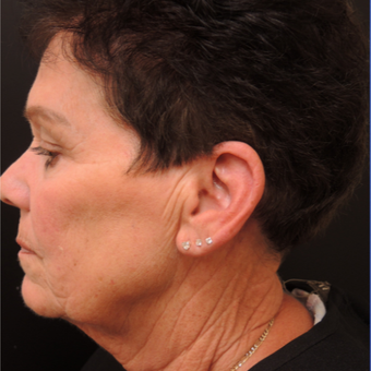 65-74 year old woman treated with Ultherapy before 3466863