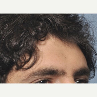 35-44 year old man treated with Forehead Augmentation 1602263