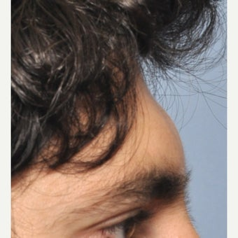 35-44 year old man treated with Forehead Augmentation before 1602263