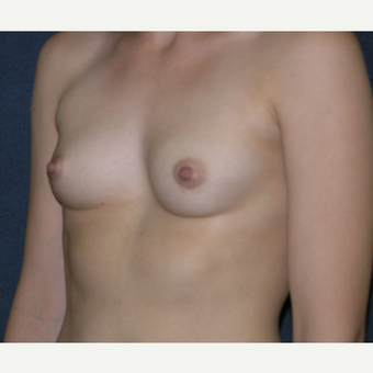 18-24 year old woman treated with Breast Augmentation before 3455647