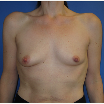 45-54 year old woman treated with Breast Augmentation (R. 286cc, L. 304cc) before 3309878