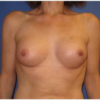 45-54 year old woman treated with Breast Augmentation (R. 286cc, L. 304cc) after 3309878