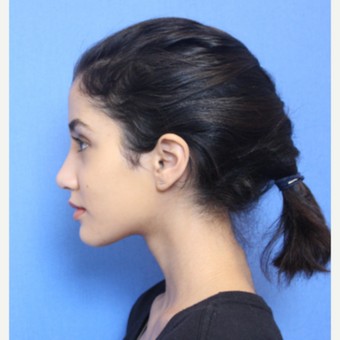 18-24 year old woman treated with Rhinoplasty after 3377755
