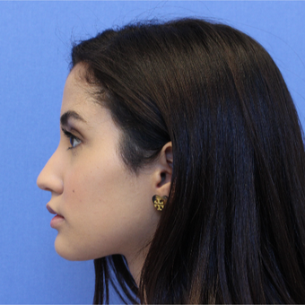 18-24 year old woman treated with Rhinoplasty before 3377755