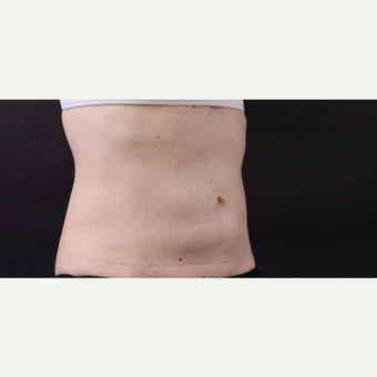 49 year old woman treated with CoolSculpting after 3630300